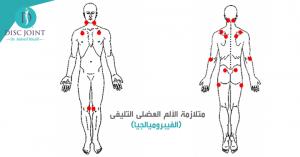 افضل الطرق لـ علاج الفيبروميالجيا والالم الليفي العضلي