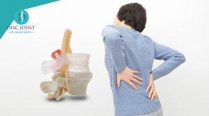 اخطاء شائعة عن الانزلاق الغضروفي