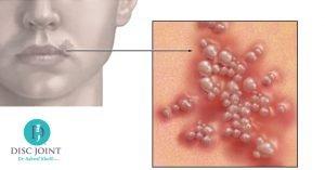 علاج فيروس هربس