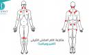 الالم العضلي الليفي