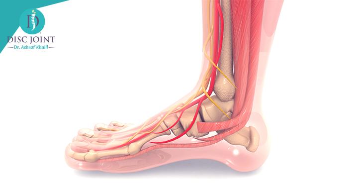 علاج التهاب الاوتار فى القدم