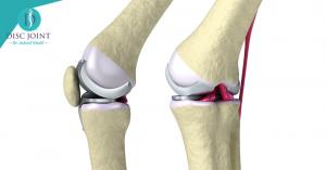 افضل علاج لخشونة الركبة والمفاصل