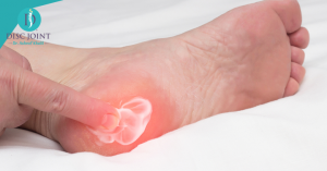 الشوكة العظمية اسبابها وعلاجها