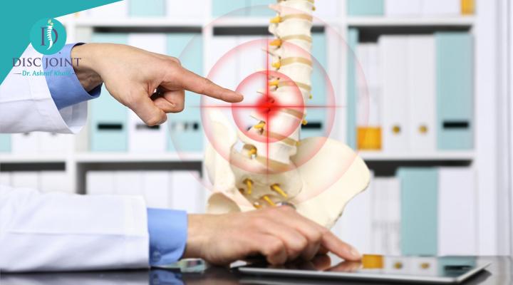 طرق علاج الانزلاق الغضروفي بدون جراحه